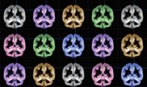 Científicos de Japón encuentran la felicidad en el cerebro