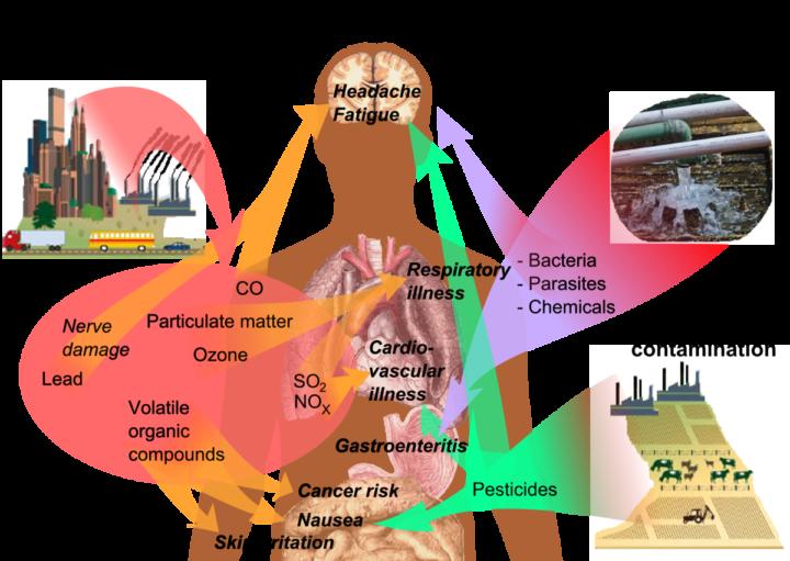 Σύνδεση της νόσου Αλτσχάιμερ με τη μόλυνση, μελέτη βρίσκει «αφθονία» τοξικών νανοσωματιδίων σε ανθρώπινους εγκεφάλους