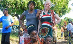 Non à la violence envers les albinos