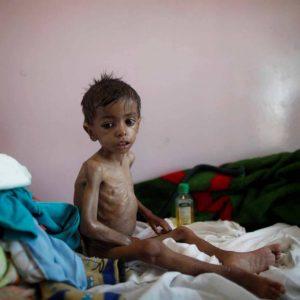 UNICEF: Yemen: dal 2015 quasi 2.400 bambini sono stati uccisi, più di 3.600 feriti e migliaia di vite innocenti distrutte