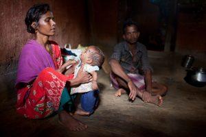 India: MSF combatte la malnutrizione con le comunità locali