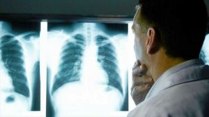 Descubren otro tipo de cáncer de pulmón no relacionado con fumar
