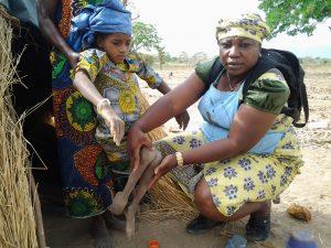 Estigma social es el mayor obstáculo para derechos humanos en Nigeria, según activistas de derechos de personas con discapacidad