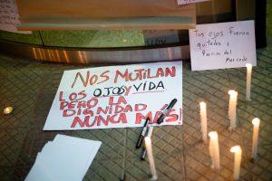 Por Gustavo Gatica, impactado con daño irreparable en ambos ojos por Carabineros de Chile