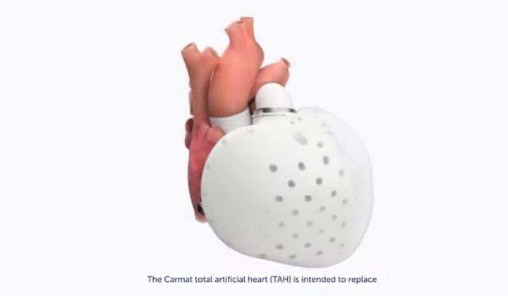 ¿Qué se sabe del corazón artificial que aparecerá en el mercado este año para servir de «puente al trasplante» para miles de pacientes?